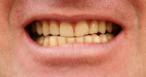 dents jaunes antibiotique