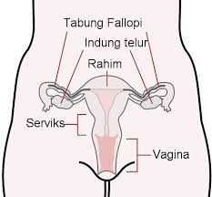 Ciri-Ciri Kanker Ovarium Pada Wanita