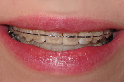 Malocclusion Class Ii. 2 Months, 16 Days
