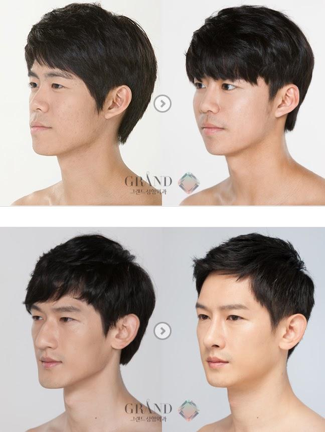 Ринопластика только кончика носа фото до и после