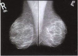 breast images