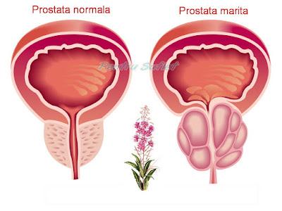 marirea prostatei