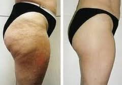 Laser Liposuction Cost