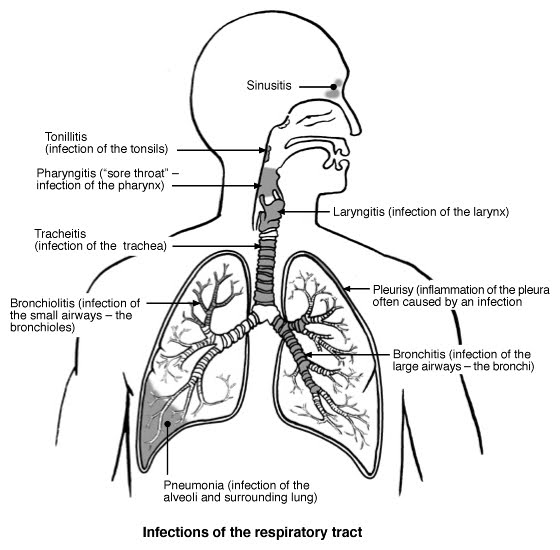 health from trusted sources  community acquired pneumonia
