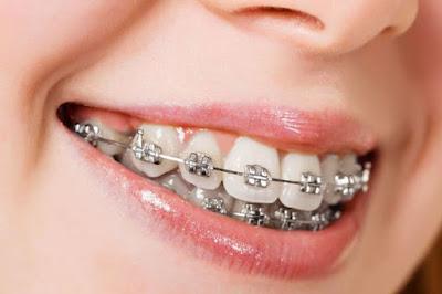 Hukum dan Bahaya Menggunakan Kawat Gigi Behel