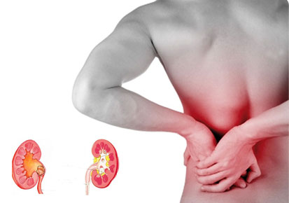 SYMPTOMS AND HOME REMEDIES FOR KIDNEY STONE