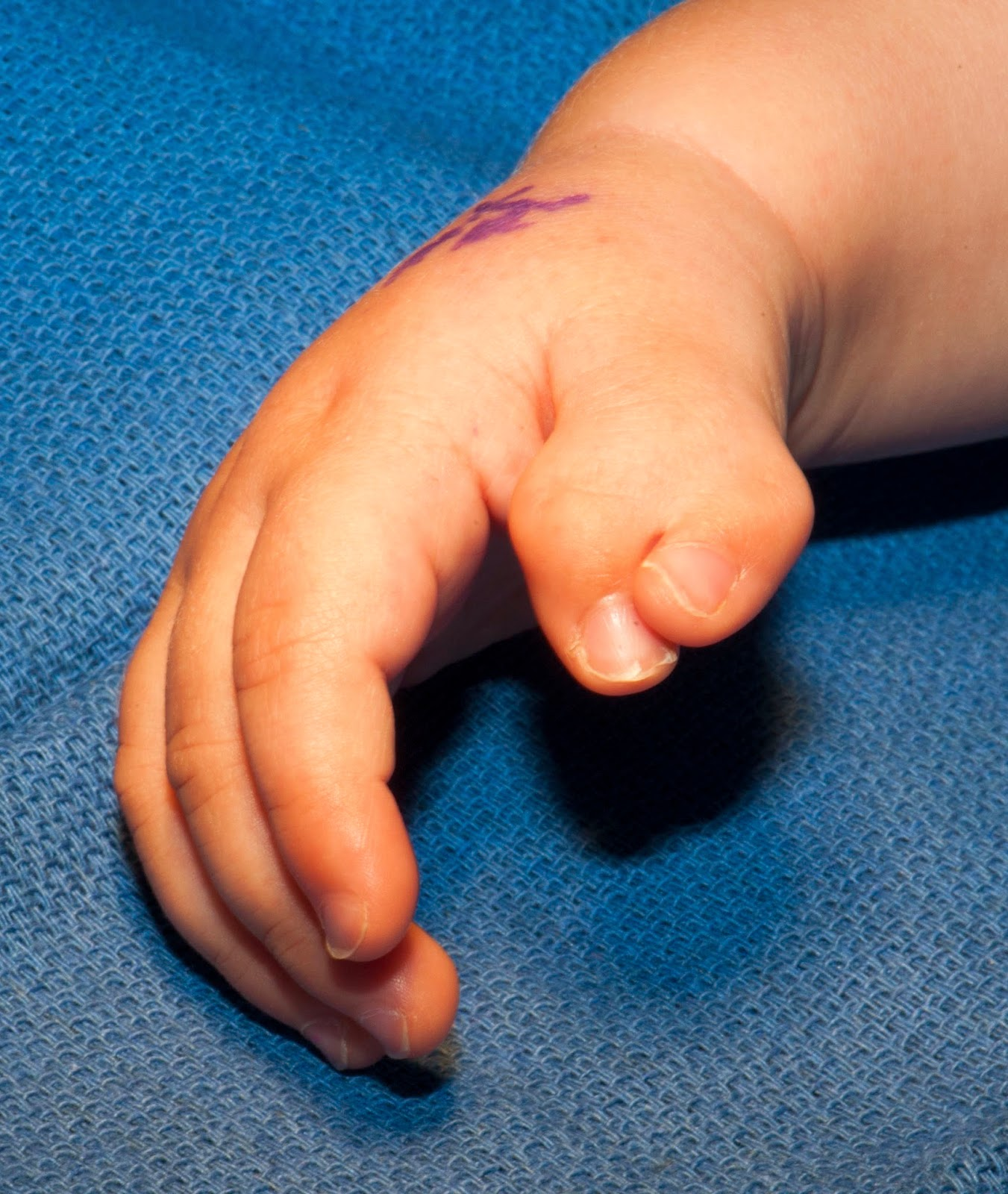 two Finger thumb