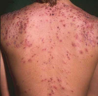 Back Acne Scars Treatment