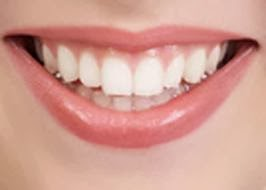 menghilangkan karang gigi