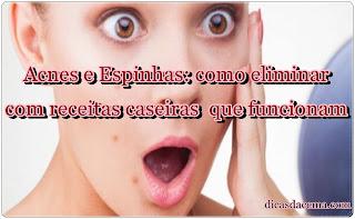acnes-e-espinhas-dicasdacema1