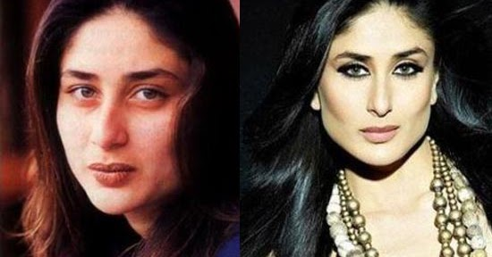 kareena kapoor before and after plastic surgery alia bhatt