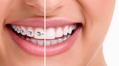 http://dentist-india-madurai.com/treatments-orthodontics-metallic-braces.html