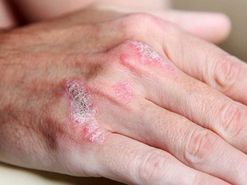 Image Obat herbal untuk penyakit alat kelamin keluar nanah