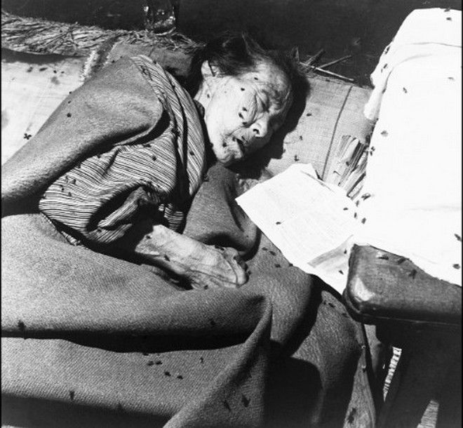 20 Shocking Pictures Of Hiroshima, The First City In History To Be Destroyed By An Atomic Bomb - An elderly woman in a makeshift hospital in Hiroshima after the destruction.