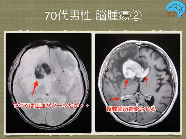 膠芽腫若しくは悪性リンパ腫のMRI。