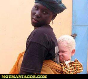 crianças albinas africanas