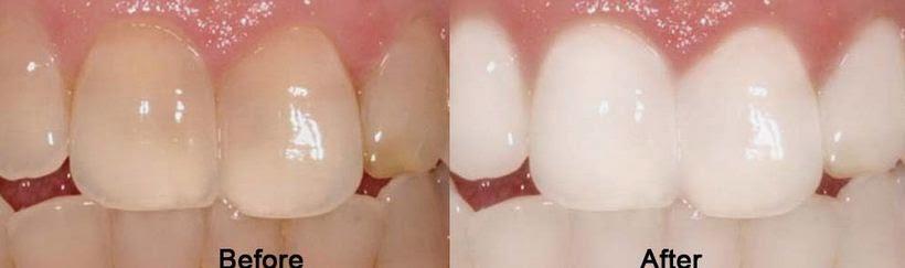 Cara Memutihkan Gigi Secara Alami, Mudah dan Cepat