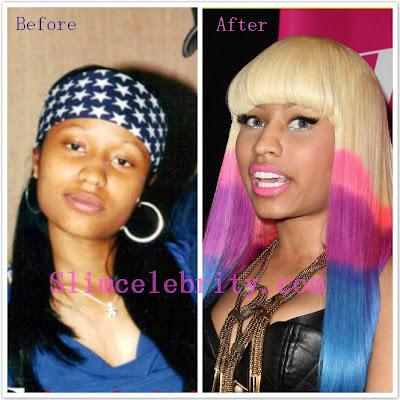 Nicki Minaj Plastic Surgery Nose Job and Breast Implants ...