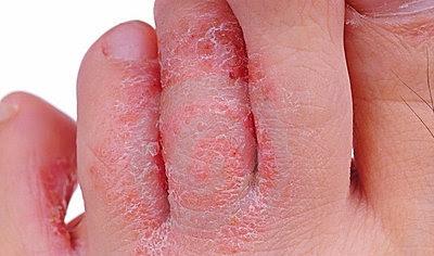 Que esmalte es mejor del hongo de las uñas en los pies