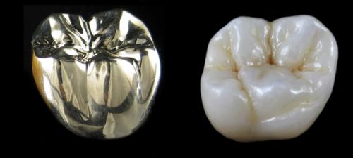 PFM Posterior Crown Restorations Restorative Dentistry Lecture Note