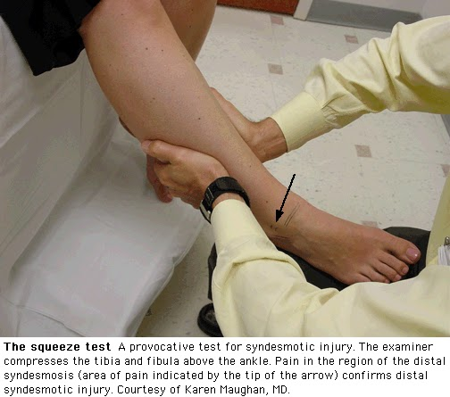 Grading – Ankle sprains have traditionally been classified based -2.bp.blogspot.com
