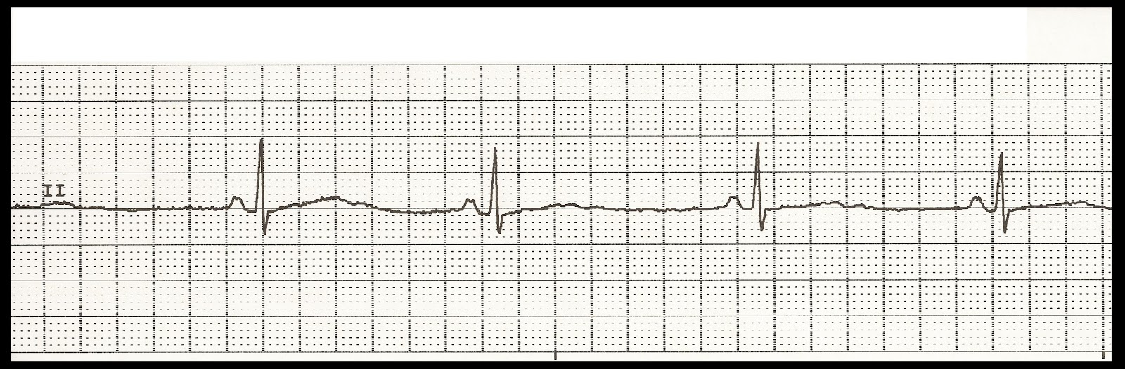 ecg rhythm strip