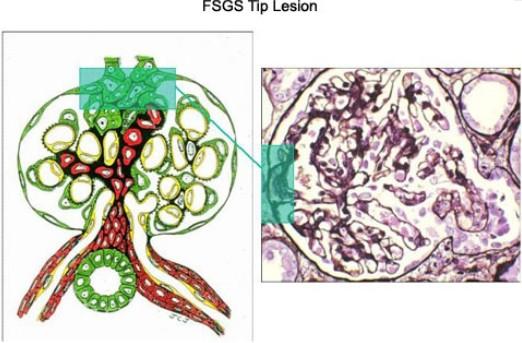 Immunosuppressive treatment of focal segmental glomerulosclerosis in adults