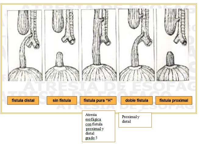 Malformaciones  congenitas digestivas