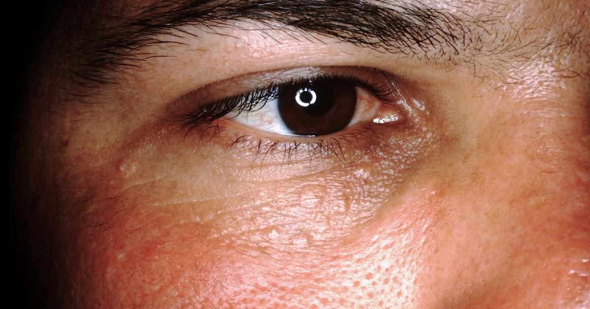 sweat gland tumors #10