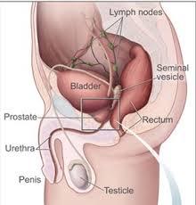 obat herbal kanker prostat terbaik alami