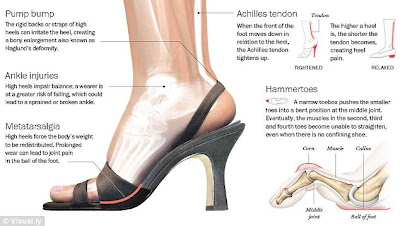 What High Heels are Really Doing to your Feet