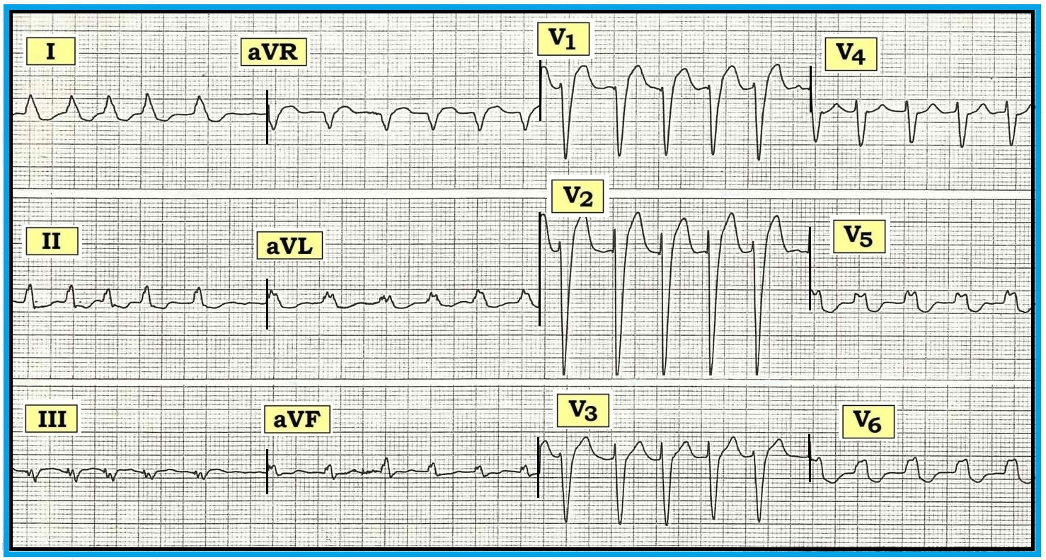 how to read a 12 lead ecg strip