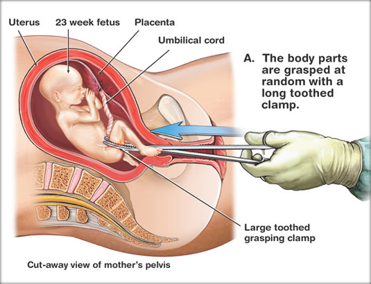 9083617 likewise Uterine Sar a Treatment Pdq as well What Is Abortion in addition Earwax Getting Gunk likewise 1712567. on vacuum tube anatomy