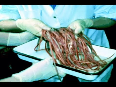 Medical Videos: What Eating Pork Does Inside Your Body