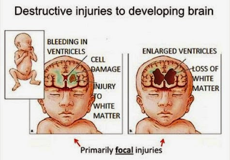 Destructive Injuries To The Developing Brain