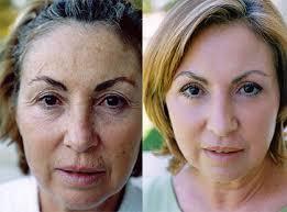 colageno pode passar na pele