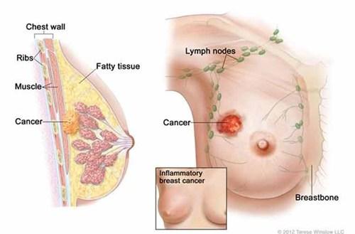 Ung thư vú có thể chữa khỏi nếu phát hiện sớm