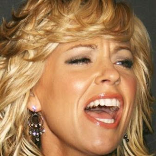 Kate Gosselin teeth