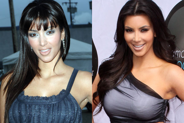 Kim Kardashian Before Plastic Surgery