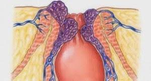 Image Obat Herbal Wasir Parah