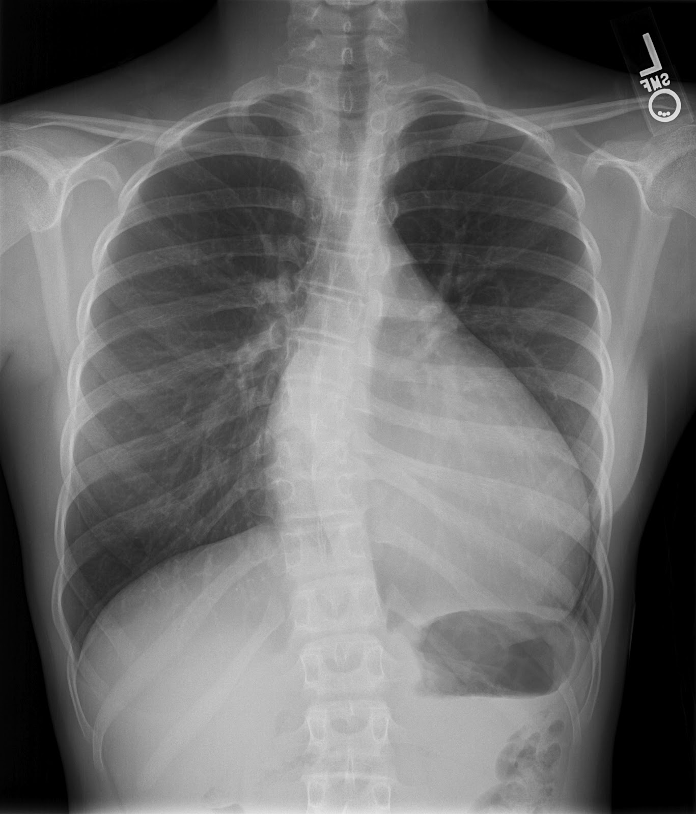 how to say cardiomegaly in xray