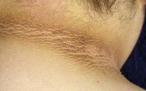 daki membandel pada area kulit karena jarang dibersihkan