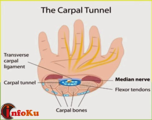 Mengenal Carpal Tunnel Syndrome