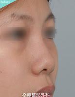 台中格嘉整形 - 隆鼻前實例