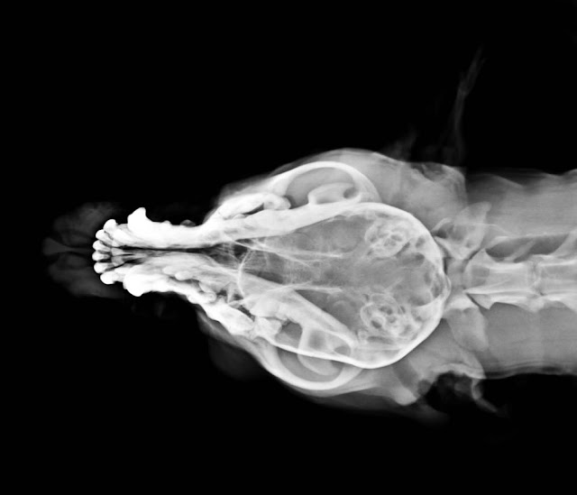 Fractura de mandíbula, vista anteroposterior