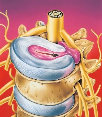 Ultrasuono su reparto cervicale di una spina dorsale