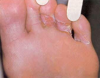 kulit kaki merekah dan gatal