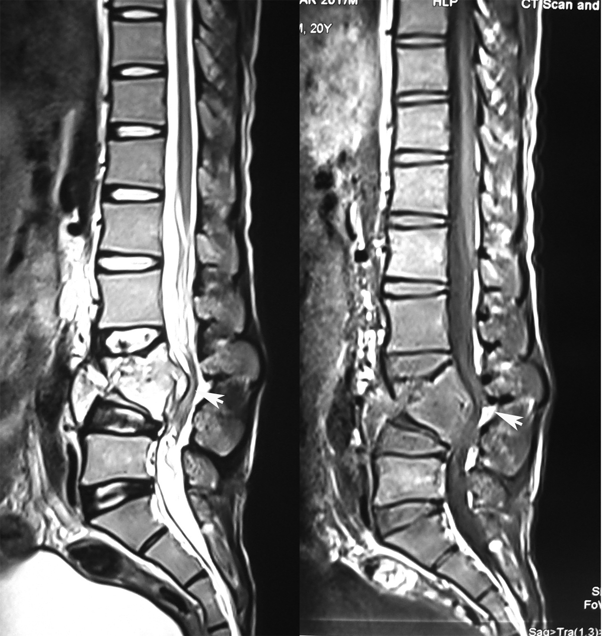 Image result for tuberculosis spine mri