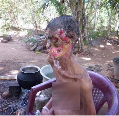 Wanita Malang Muka Di Makan Kuman
