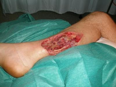 http://2.bp.blogspot.com/-6s78ach5ltQ/URBTDhytvHI/AAAAAAAAA1g/9izXcQuYZXI/s1600/flesh%2Beating%2Bbacteria.jpg